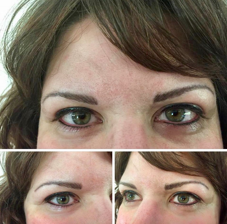 3D Microblade Brows - After